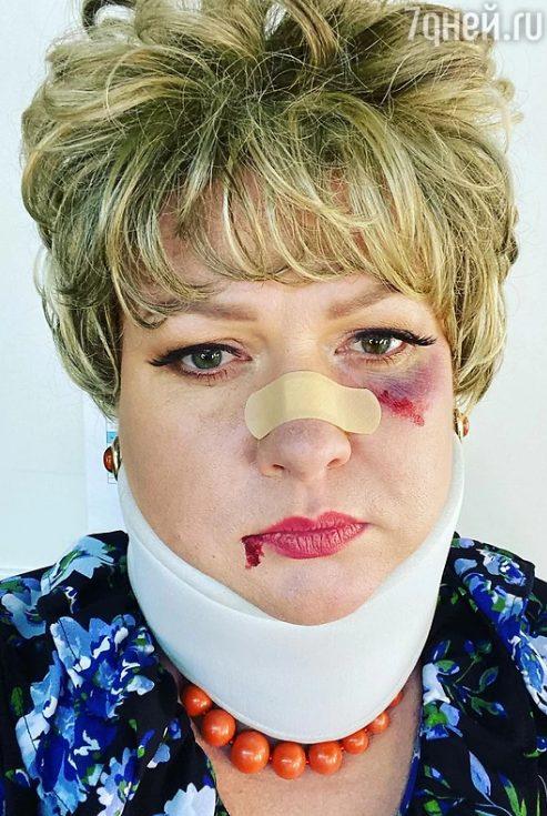 Лейкопластырь на носу и синяк под глазом. Фото Картунковой вызвало переполох в Сети